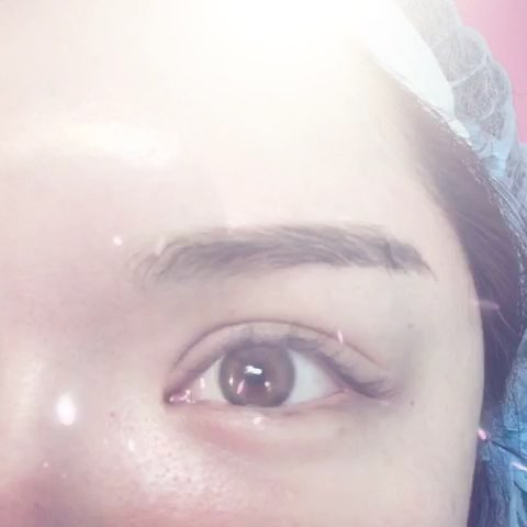 微整欧式双眼皮图片