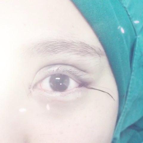 美女专程韩国赶来做欧式双眼皮图片