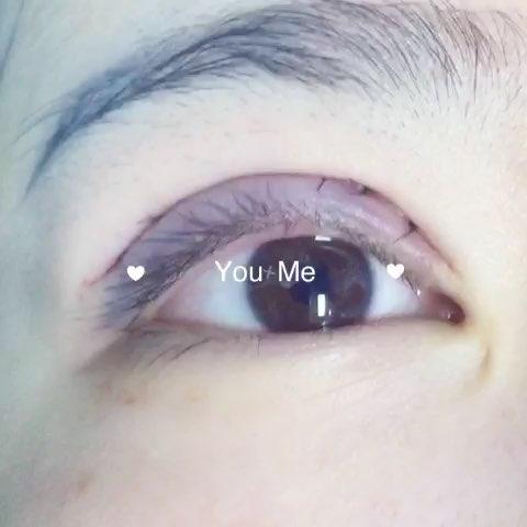 芭比眼术后现场心动时刻#修复双眼皮##欧式芭比平行双眼皮# 咨询vxin