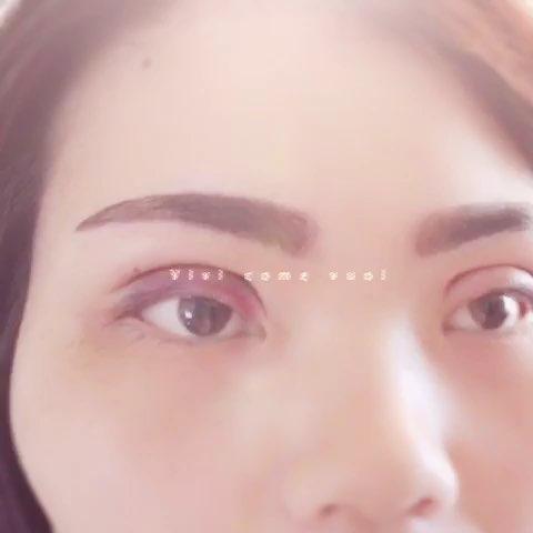 欧式双眼皮# 平行双眼皮 - 微美人整形sh的美拍图片