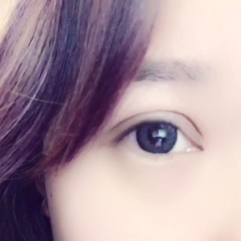 欧式平行双眼皮+内眼角,今天是第15天了哦.图片