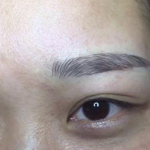 纳米双眼皮不红不肿零恢复期韩式微创双眼皮
