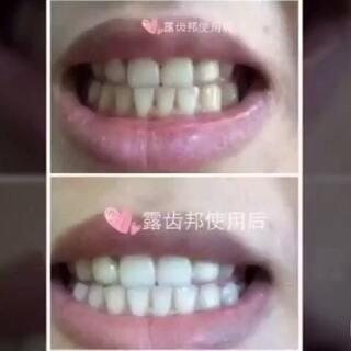 #随手美拍##美白牙齿##全民晒牙齿#想和他们一样美白牙齿,并且不伤害牙齿吗? 绝对安全有解决你的口腔问题。😂 老人小孩都可以用的。 还你一口洁白无暇的大门牙。😂😂 微信:chen931017520